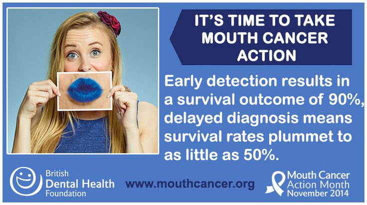 LIKE and SHARE: Early detection for mouth cancer results in a survival outcome of 90%, delayed diagnosis means survival rates plummet to as little as 50%. If in doubt, get checked out! Learn more: http://www.mouthcancer.org/signs-and-symptoms// #MCAM14 #Bemouthaware #Bluelipselfie #MouthCancer