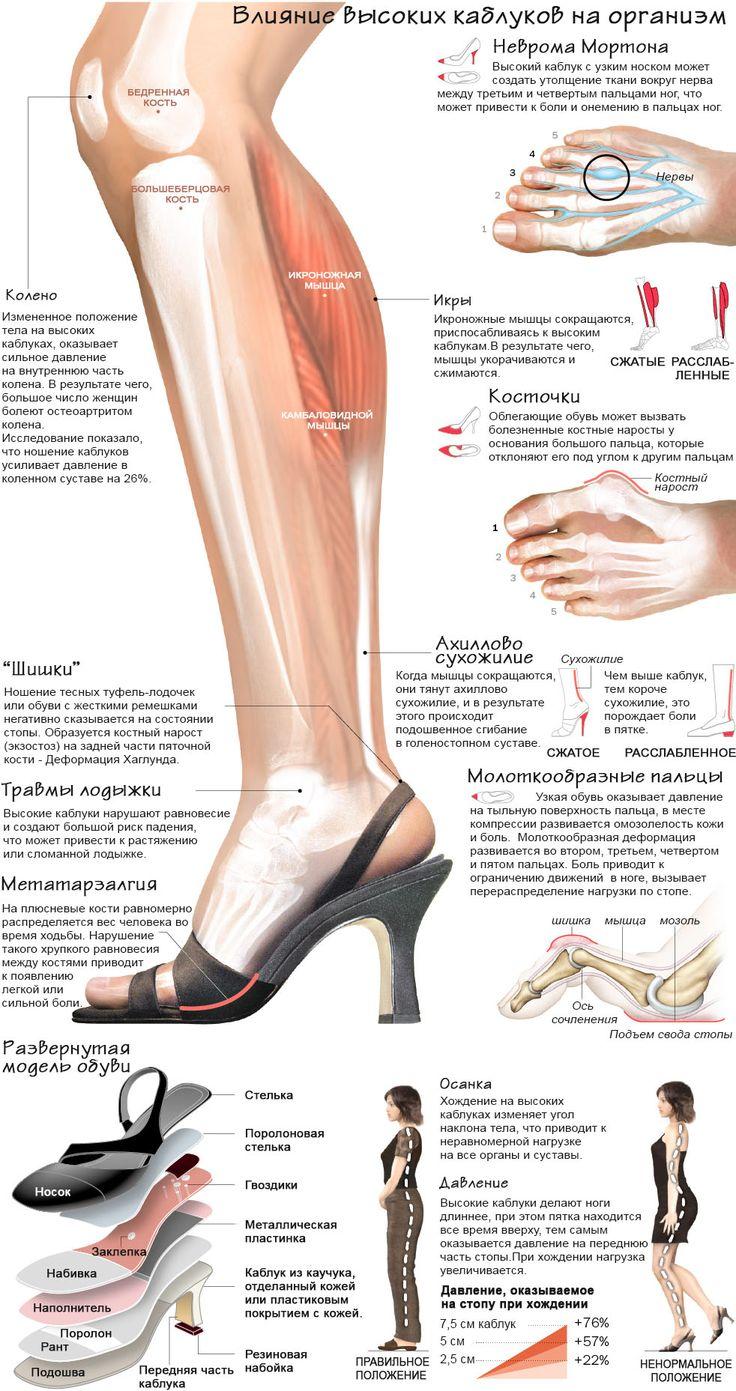 Инфографика: как высокие каблуки влияют на ваше здоровье