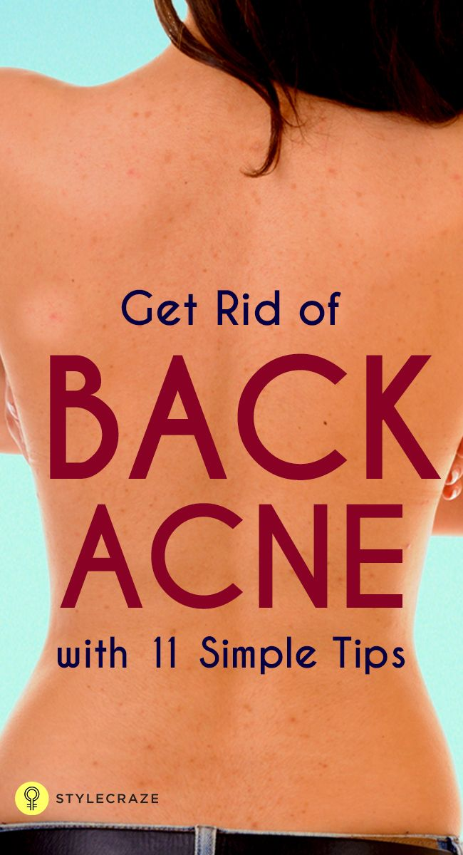 how to get rid of small acne bumps on forehead
