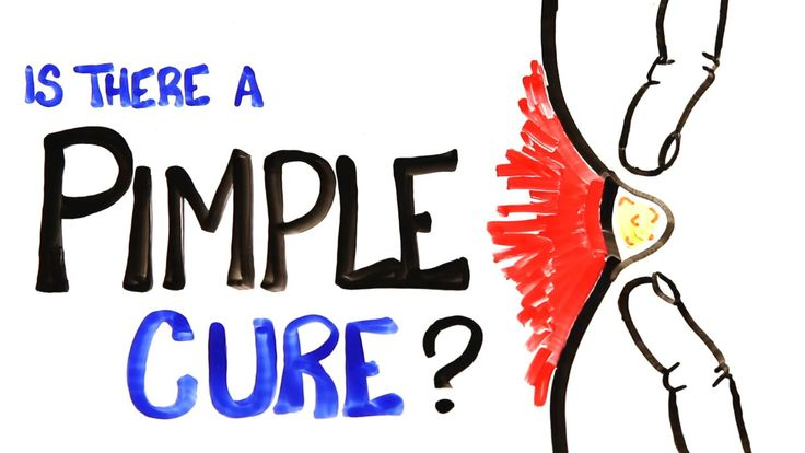 Exploring the Concept of a Cure for Pimples