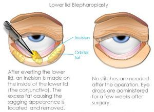 Eyelid surgery can be used to correct bags beneath a drooping eyelid or the eyes. Since, in most cases, this isn't correcting a life changing state #droopyeyelid #beauty #eyebags