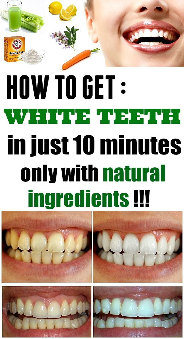 How to get white teeth in only 10 minutes ! - Instant Beautyify!
