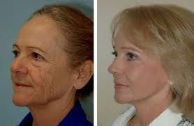 A Face Exercise Toning Regime That Produces Organic Facelifts