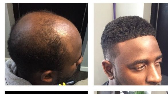 """Man weaves, more formally known as cranial prosthesis, are a non-surgical procedure by barbers to help balding men. They're growing in popularity as more men opt to spend up to $800 to """"regain"""" hair."""