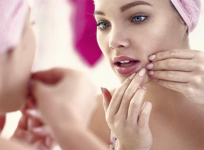 Safe Zit Popping Tips: How to Pop a Pimple   Fashionisers
