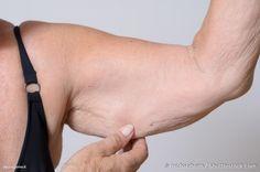 Il grasso nelle braccia è un problema comune a molte donne. I cuscinetti di grasso nella zona del tricipite non sono facili da eliminare visto che i muscoli di quest'area sono poco coinvolti nelle attività quotidiane. Inoltre, con l'a...