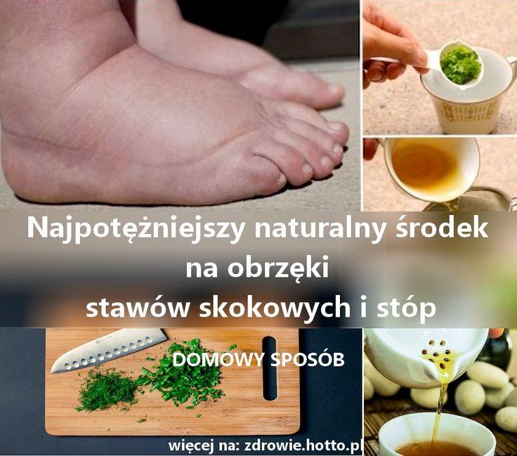 Najpotężniejszy naturalny środek na obrzęki stawów kolan, kostek, nadgarstków i stóp ! Możliwe są różne przyczyny puchnięcia kostek, kolan, nadgars