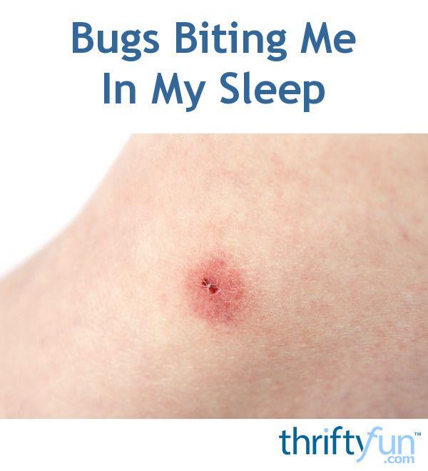 Bed Bug Bites: Symptoms and Treatments - Healthline