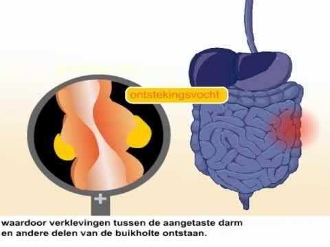 Crohn » Ziezon - Landelijk Netwerk Ziek Zijn en Onderwijs