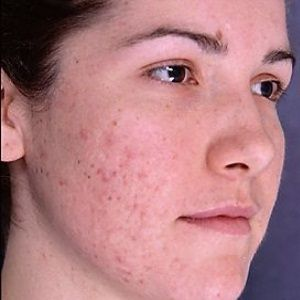 Vitamin E To Get Rid Of Acne Scars. Visit www.nuvosa.com for more skin care tips.
