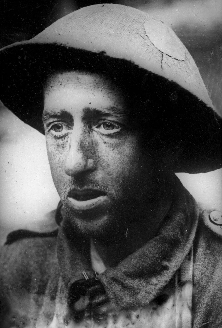 A captured soldier suffering from Shell Shock, The Somme, 1916