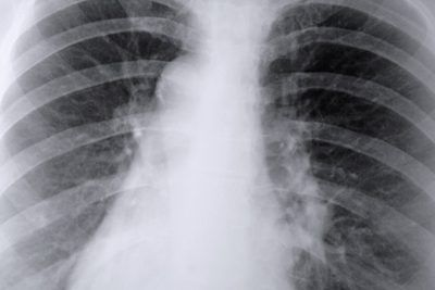how to help lungs heal after quitting smoking