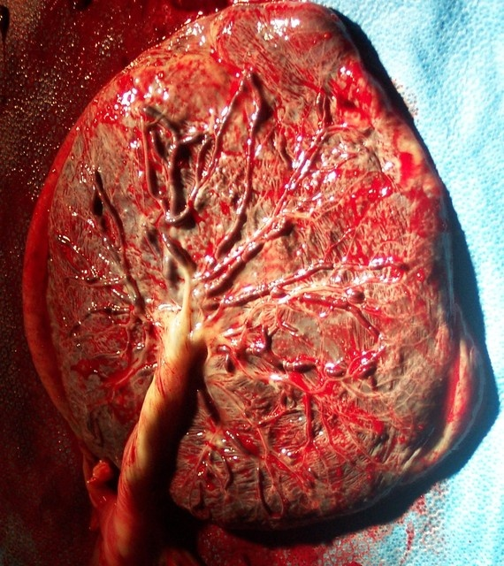 Human placenta, amazing little pouches of life.