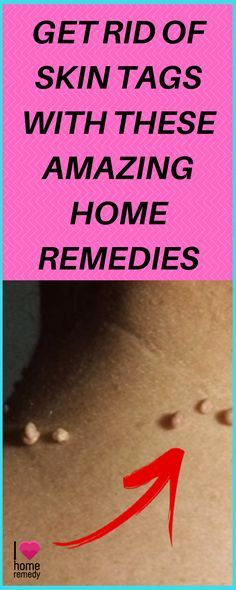 Get Rid of Skin Tags With These Amazing Home Remedies