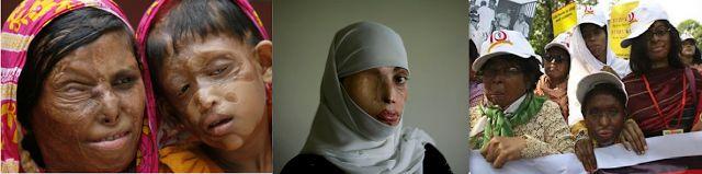 """Lei Islâmica em Ação: Exemplos de """"Direitos"""" das Mulheres sob o Islã - PARTE 1"""