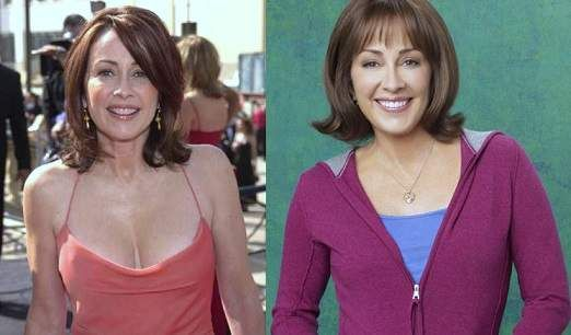 Patricia Heaton Plastic Surgery Before And After Photos