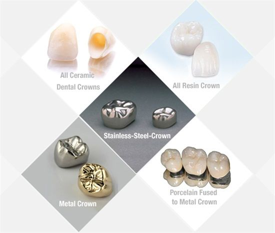 """A dental crown is a tooth-shaped """"cap"""" that is placed over a tooth -- to cover…"""