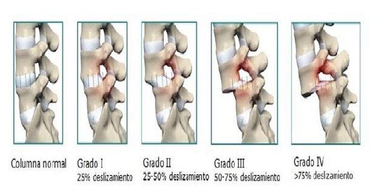 Funcionalidad de la columna vertebral en pacientes tratados con espondilolistesis