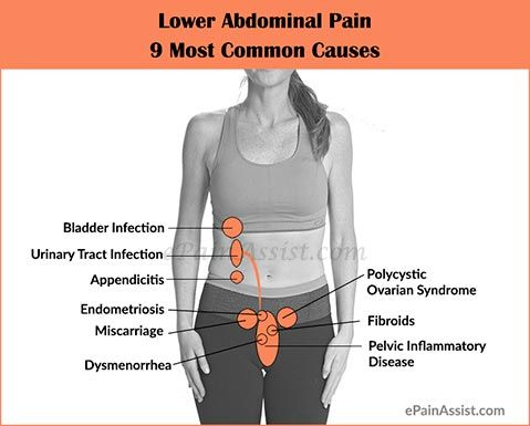 9 Most Common Causes, Symptoms, Investigations and Treatment for Lower Abdominal Pain