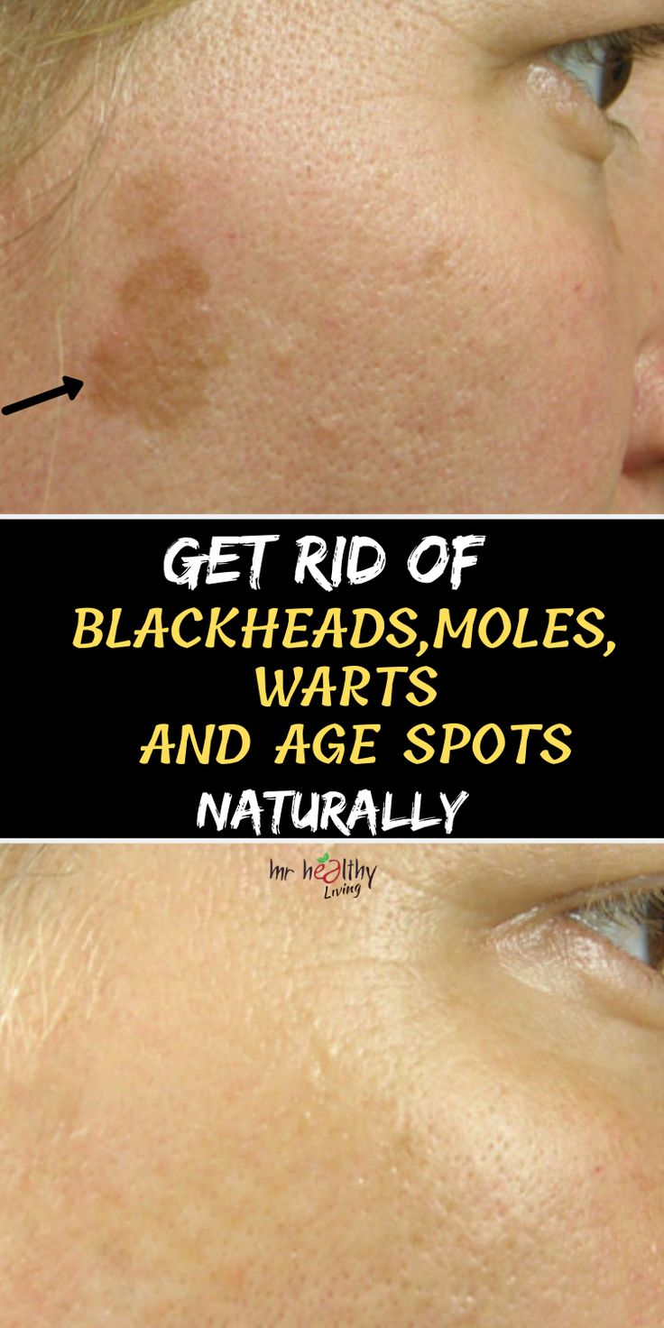 Get rid of blackheads moles warts and age spots