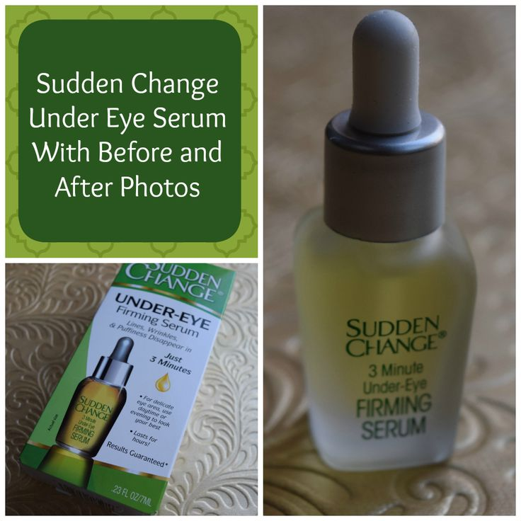 #ad This stuff is amazing! Click through to see my before and after photos! Sudden Change Eye Serum Review.  #‎InstantRetouchwithSuddenChange‬