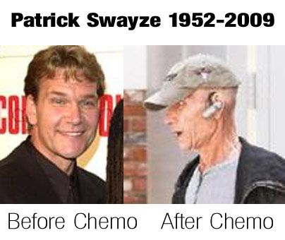 Patrick Swayze dead at 57 after chemotherapy for pancreatic cancer