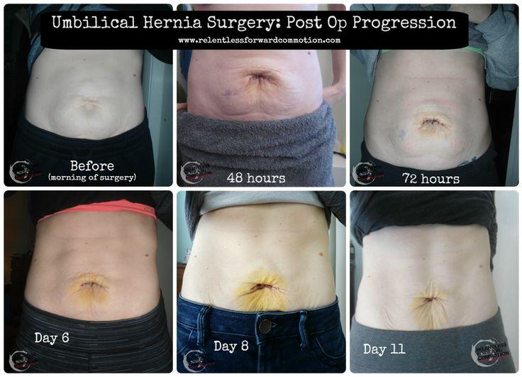 Hernia Recovery Progression