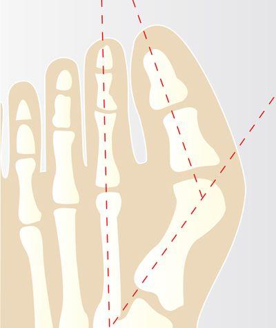 Prevenire l'alluce valgo: ecco gli esercizi - Esseredonnaonline