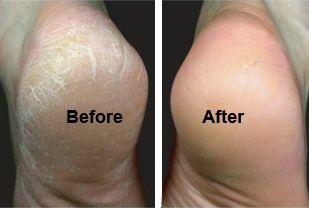 Débarrassez-vous des callosités : mélangez deux cuillères à soupe de bicarbonate de soude dans une bassine d'eau chaude et ajoutez quelques gouttes d'huile essentielle de lavande. Après un agréable trempage, les gommer à fond à l'aide d'un mélange d'1/3 de bicarbonate de soude, 1/3 d'eau et 1/3 de sucre brun. Appliquez en suivant une crème hydratante riche et enveloppez vos pieds dans une serviette chaude. Laissez poser assis pendant 5-10 minutes.
