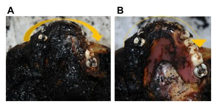Figure 10 (A) The upper jaw with the denture before removing the soft tissues and (B) after removing the soft tissues.