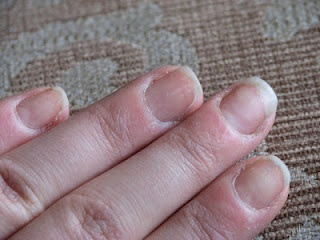 Maaike from The Netherlands desperately wanted to get her nails looking their best for her wedding day.  she entered the Bare Naked Nail Challenge and within 8 weeks her nails were transformed into attractive, healthy-looking ones that Maaike was very proud to show off.  #cuticles, #breaking nails, #dry nails, #splitting nails #TIPS #nail treatment #manicure  www.askcosmetics.com