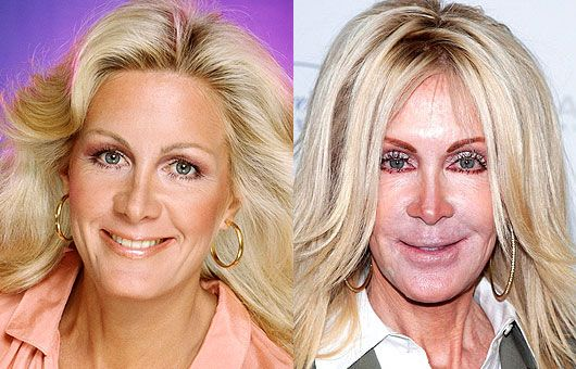 Joan Van Ark plastic surgery oh no...