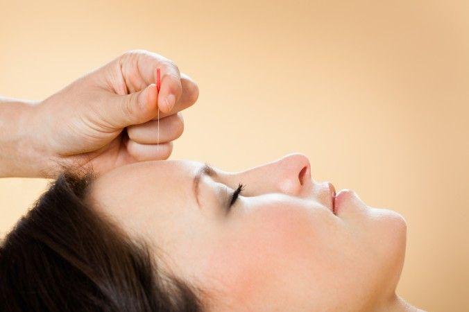 ¿Siente ansiedad? La acupuntura puede proporcionarle alivio, ya que toma en…