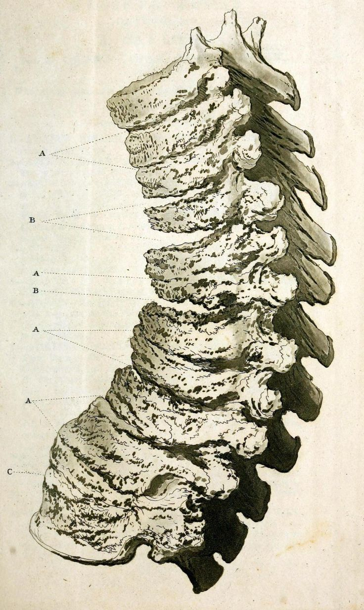 Ankylosing spondylitis in the wrists, forearms, and spinal column Note the fused wrist bones in the arms, and the abnormal protuberances, fusions, and cavities in the spine. Ankylosing spondylitis...