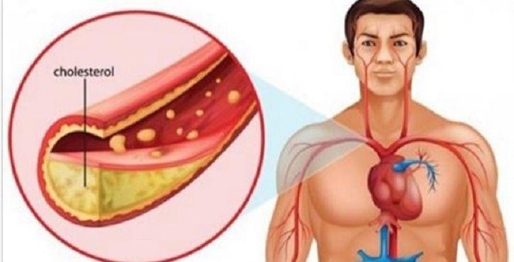 Artérias obstruídas podem causar sérios problemas de saúde, isso todo mundo já deve saber.Quando nossas artérias ficam obstruídas pelo excesso de gordura, por exemplo, aumentam as chances de ataque cardíaco e outras doenças.