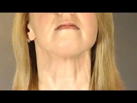 Natural Facelift/Facial Exercises: Lose Your Double Chin and Tone Your Jawline with Faceworks - YouTube