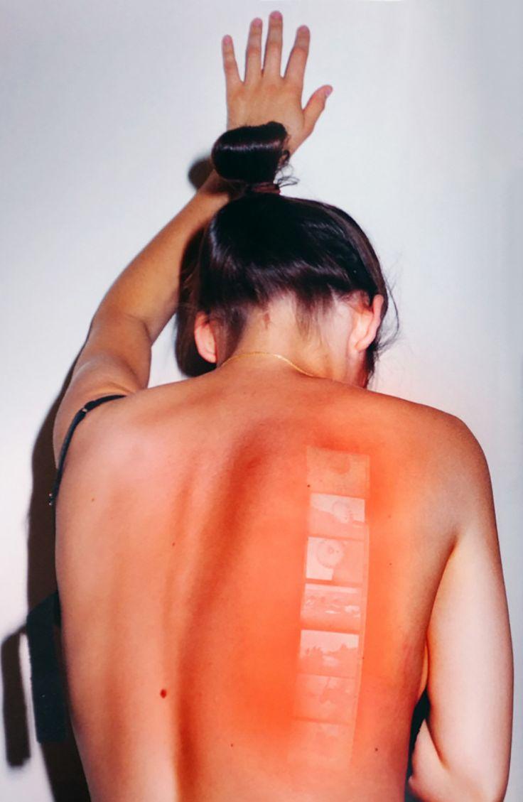 """Cet artiste imprime des photos anciennes sur la peau avec... des """"coups de soleil"""" !"""