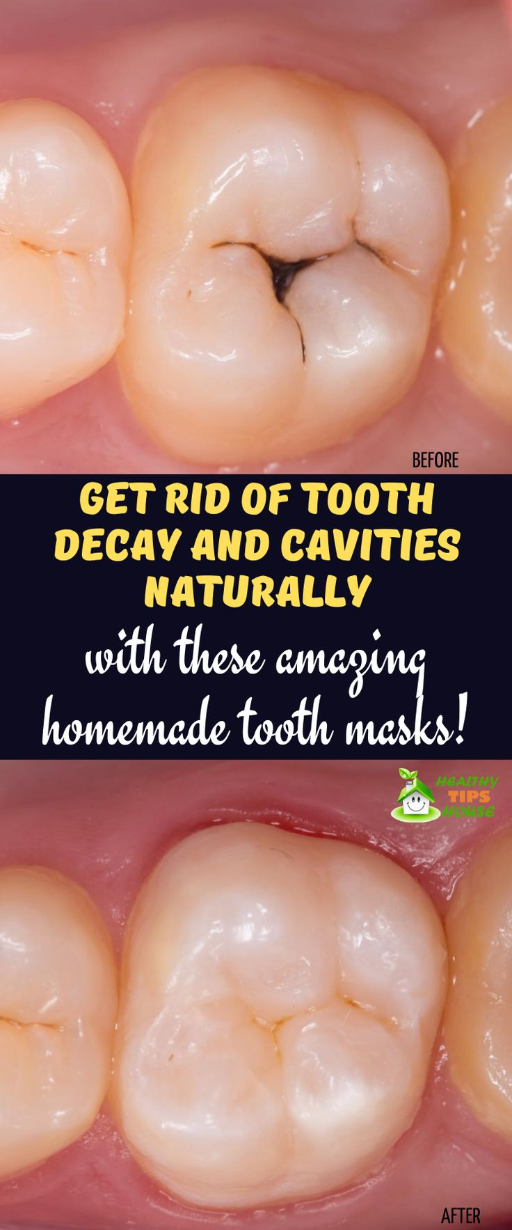 Use these three tooth mask to treat Tooth Decay Naturally