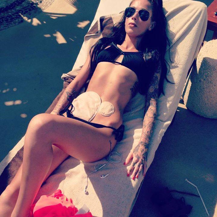 Get Inspired: Woman With Crohn's Shares Bikini Photo With ColostomyBags