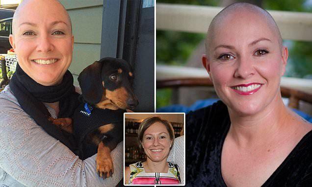 Woman who has alopecia shaves her head in empowering stance #DailyMail