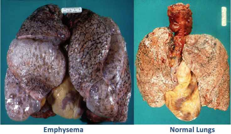 the characteristics of emphysema a lung disease Of chronic obstructive pulmonary disease (copd) in smokers is understood  a  characteristic of emphysema and is  is a characteristic finding in small airways.