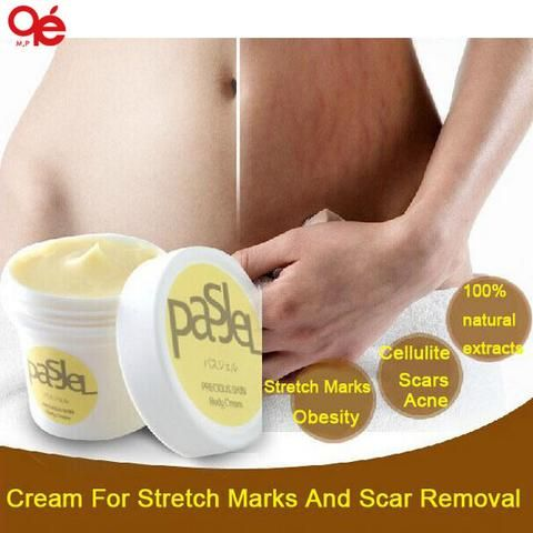 Cream For Stretch Marks And Scar Removal Powerful To Stretch Marks Maternity Skin Body Repair Cream Remove Scar Care Postpartum - Cerkos.com