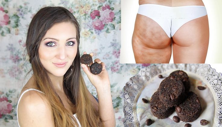 These cute cellulite scrub bars are so simple to make and yet really effective! if you don't have cellulite they also work awesomely as exfoliating bars for ...