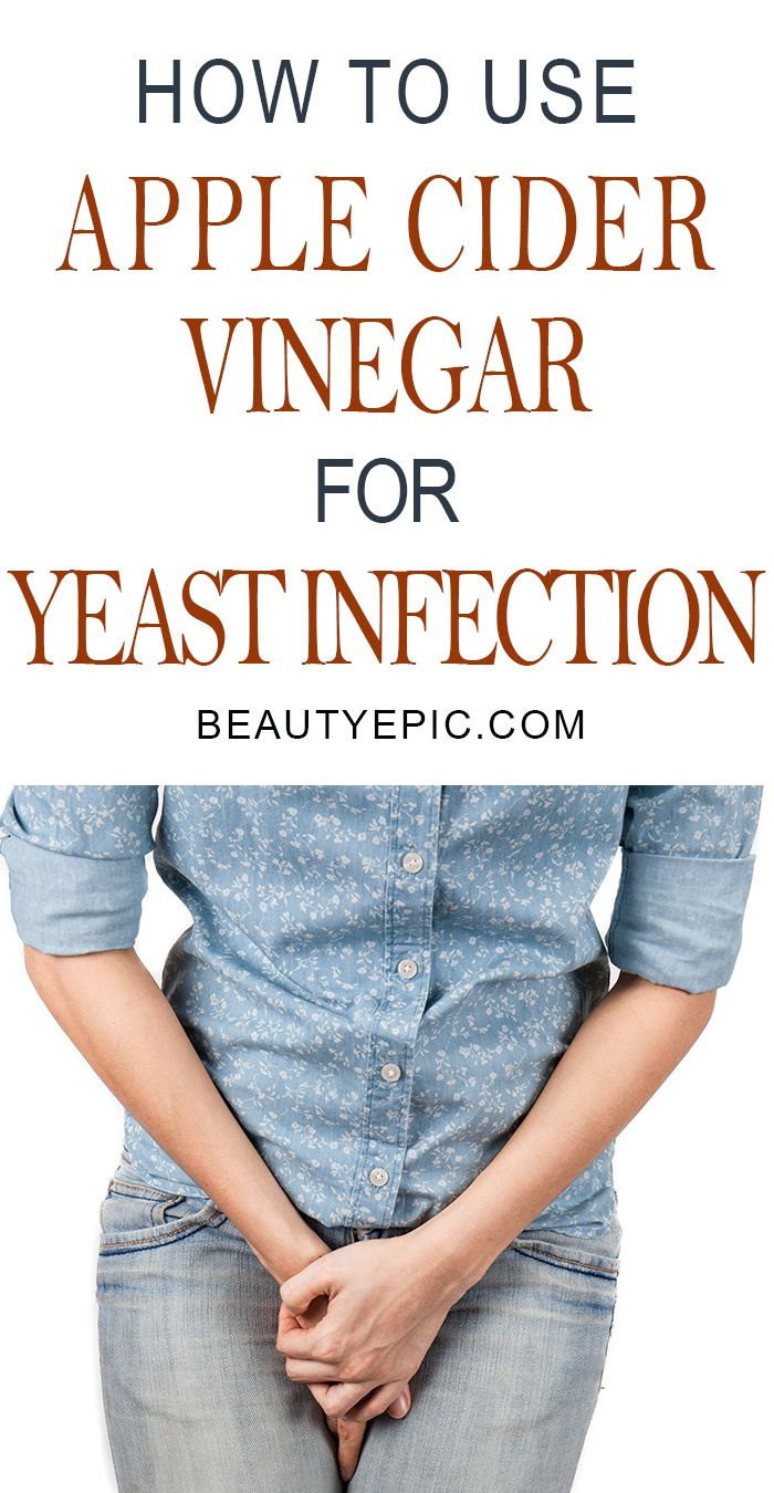 4 Effective Ways to Use Apple Cider Vinegar for Yeast Infection That Really Works