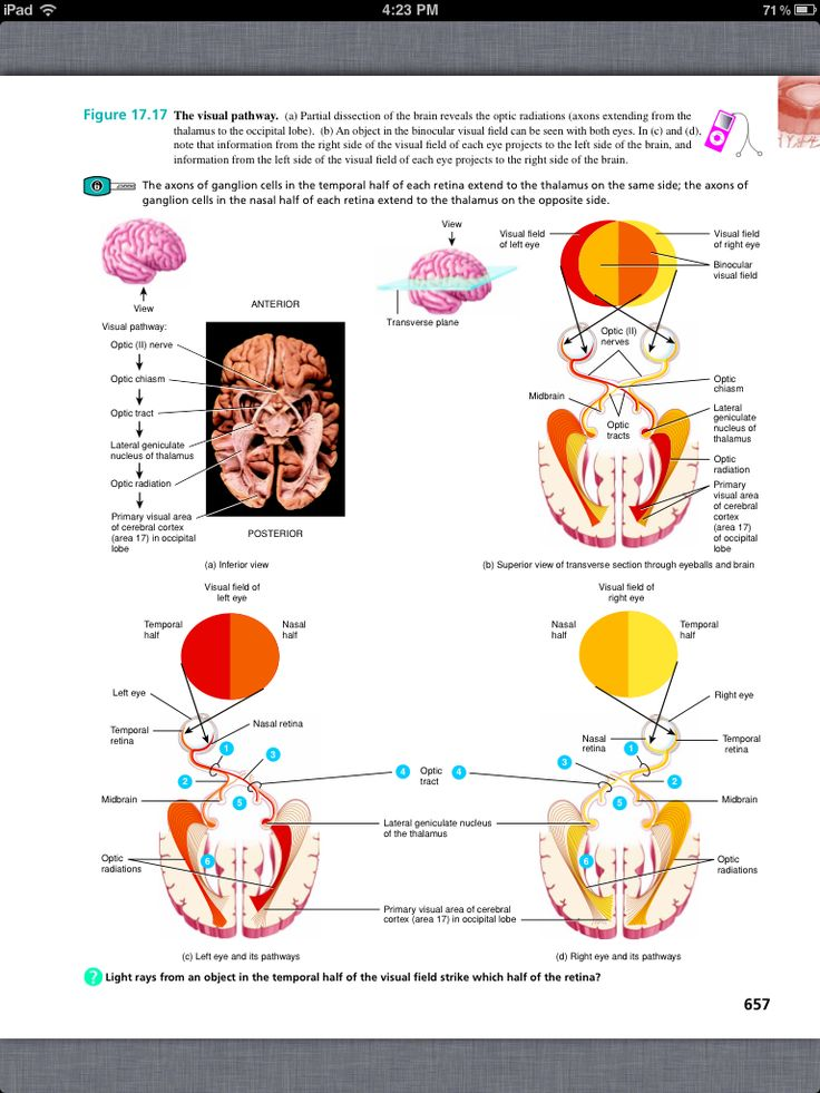 13 best AP Chapter 9 Special Senses images on Pinterest | Anatomy ...