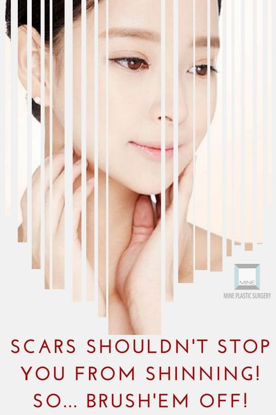 #Scar_Removal_surgery is a very effective one & it comprises of optimal ways as in #elliptical, #z_plasty, #w_plasty & #local_flap in order to minimize the scar as much as possible