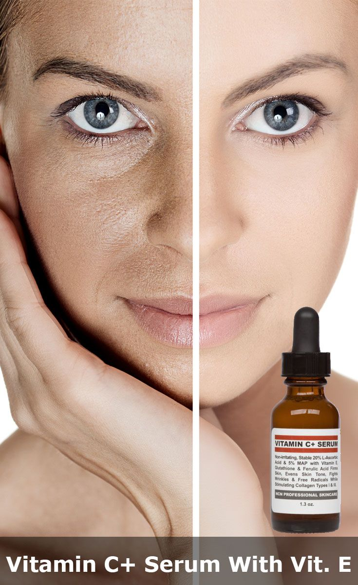 Our 20% Vitamin C+ Serum with MAP, Vitamin E, Ferulic Acid, Glutathione, Sea Kelp Bioferment, Hyaluronic Acid, and Oat Beta Glucan will improve skin clarity and tone. Your skin will appear firmer and smoother and with continued use, you will begin to see an improvement in the appearance of fine lines and wrinkles, as well as a more even #skin tone. Dark spots fade with continued use of Vitamin C+ Serum with MAP, #Vitamin E, Ferulic Acid, Glutathione.