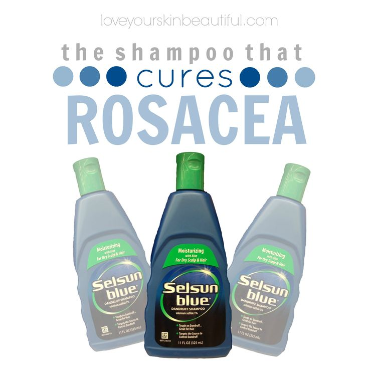 selsun blue rosacea cure--with aloe