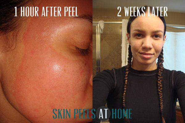 TCA Skin Peels Before and After Photos. I've been doing TCA peel since I was 23 10 years later I'm glad I even got this crazy idea to start in the first place