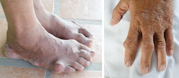 Разница между артритом и подагрой фото